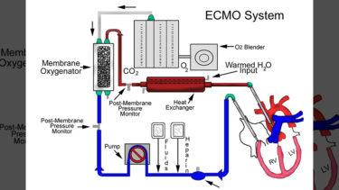 「エクモ」とはどういう意味?アルファベットで「ECMO」と記述するとの事。